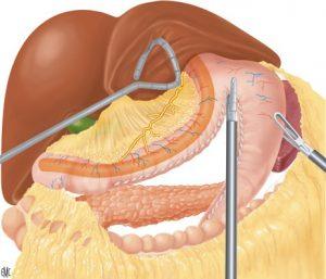 gastrectomía tubular
